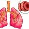 Az asztma szövődményei, következményei