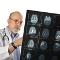 Hajlamos Ön a stroke-ra? A stroke rizikófaktorai