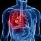 Milyen tünetek utalhatnak a tüdőrákra?
