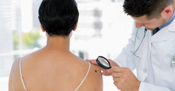 Vasculitis - a vasculitis tünetei, okai, típusai és kezelése - Tünetek