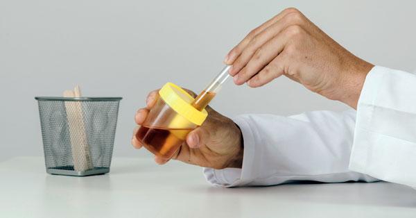 Kevés vizelet: innen tudhatja, hogy veseelégtelenség okozza - EgészségKalauz