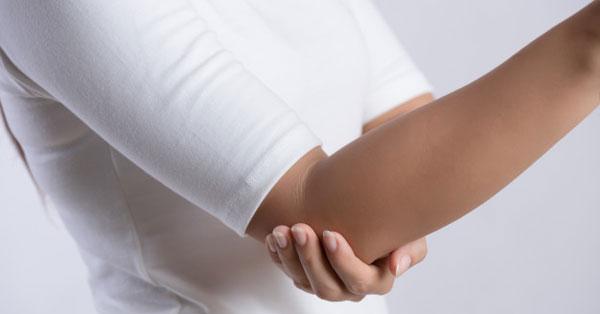 Ekcéma tünetei és kezelése | BENU Gyógyszertárak