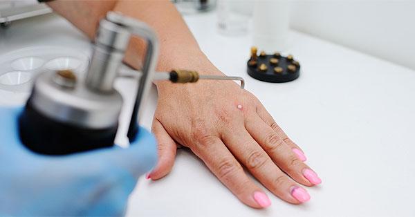 Kézen lévő szemölcs fagyasztásos kezelése