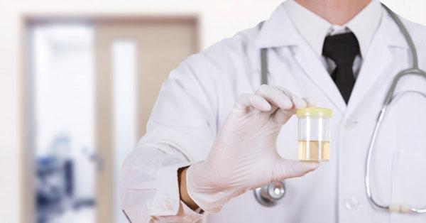 példa étrend vese lithiasisration