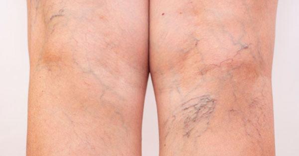 Súlyos visszerek és lábfekélyek, Hogyan kezeljük a varikozus lábfekélyeket
