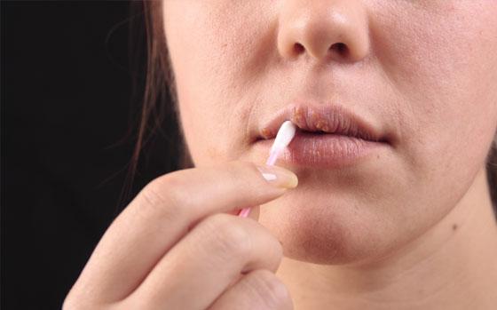 Ajakherpesz: hólyagok az ajkakon