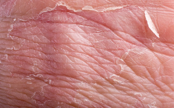 Bőrgyulladás