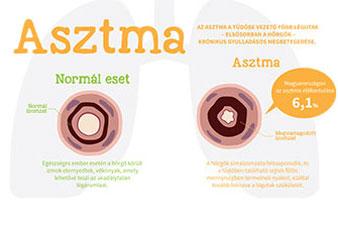Hogyan kezelhető hatékonyan az asztma?
