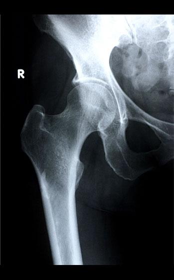 Combnyak röntgen