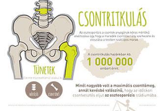 Mely tényezők növelik a csontritkulás kockázatát?