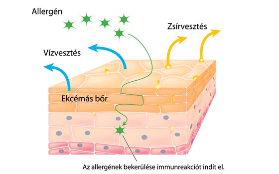 Ekcémás bőr