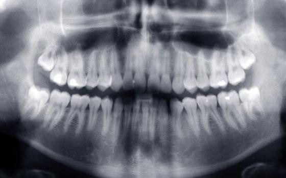 Panorámaröntgen
