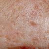 Heges, gyulladt bőr
