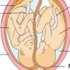 Ikerterhesség