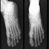 Lábfej röntgen