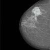 Így néz ki a mellrák egy mammomgáfiai felvételen