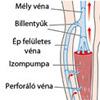 Mélyvénás trombózis és visszértágulat