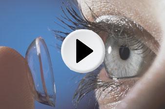 Kontaktlencse használata gyerekeknél