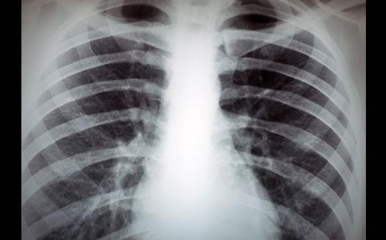 Mellkas röntgen