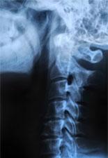 Nyakcsigolyák röntgenfelvétele