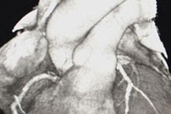 A szív - kardio CT képe