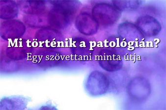 Mi történik a patológián?