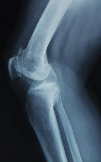 Térd röntgen