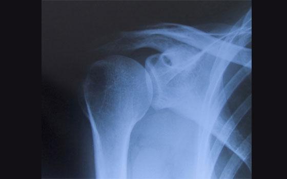 Váll röntgen