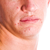 Incontinentia pigmentii