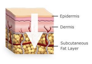 Felszívódás a bőrőn keresztül