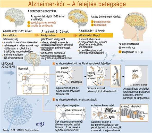 Alzheimer-kór infografika