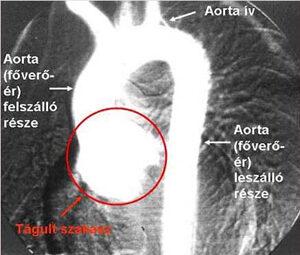 Aortoanulectasia (főverőér kezdeti szakaszának tágulata) (Forrás: MNSZA)
