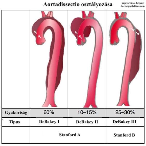 Aortadissectio osztályozása, Kép forrása: https://doctorguidelines.com/2017/06/28/acute-aortic-dissection/