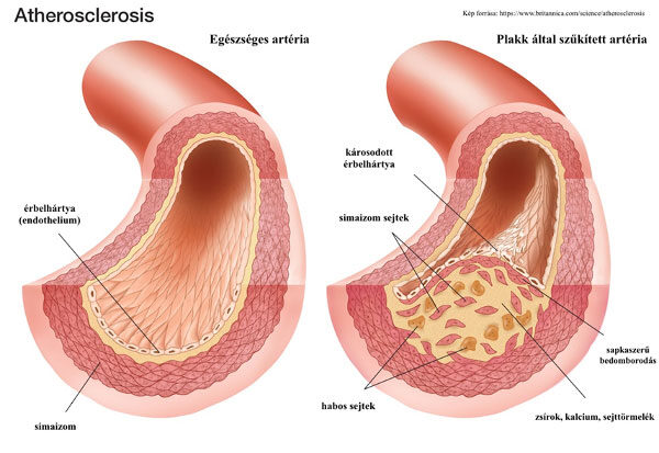 Atherosclerosis, Kép forrása: https://www.britannica.com/science/atherosclerosis