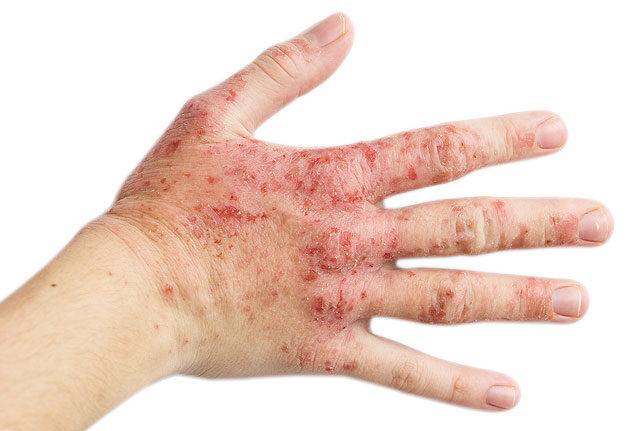 vörös és foltos kéz- és lábbőr)