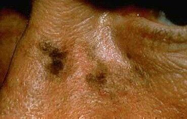 az ajkán vörös folt hámlik lotion for pikkelysömör tiszta test