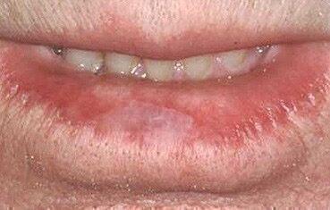 az ajkán vörös folt hámlik)