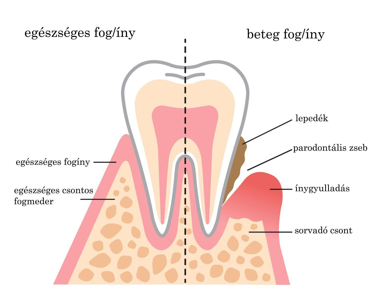 Egészséges fogíny/Beteg fogíny