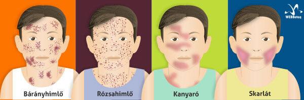 Skarlát és más kiütéses fertőzések elkülönítése