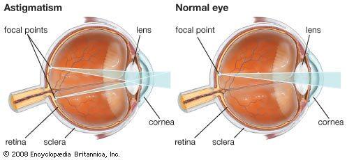 természetes gyógymódok és gyógynövények a rövidlátáshoz hogyan jelzik a látást