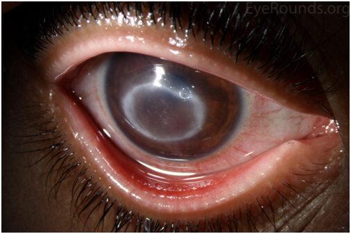 látás keratitis után)