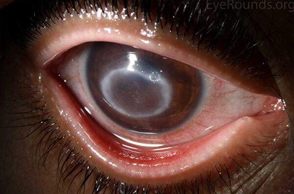 keratitis homályos látás