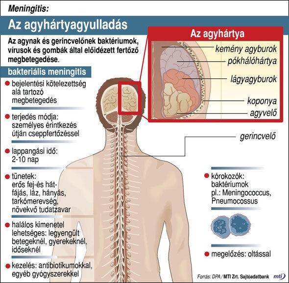 Agyhártyagyulladás infografika