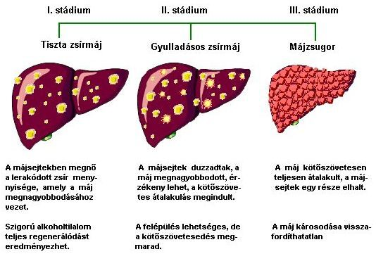 A májbetegség három stádiuma