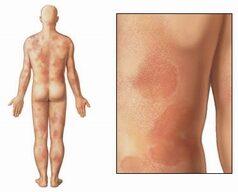 Ételallergiás reakció bőrön; Forrás: http://12.31.13.50/library/healthguide