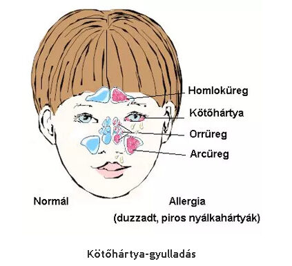 Allergia tünetek gyermeken