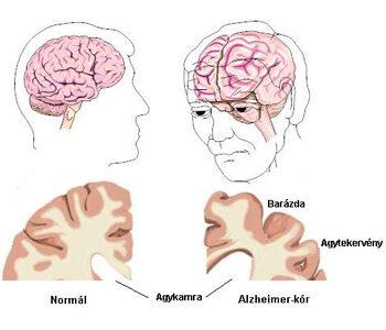 Egészséges agy és Alzheimer-kóros beteg agya