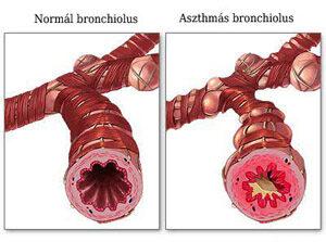Normál bronchiolus és asztmás bronchiolus, Kép forrás: http://ecureme.com/