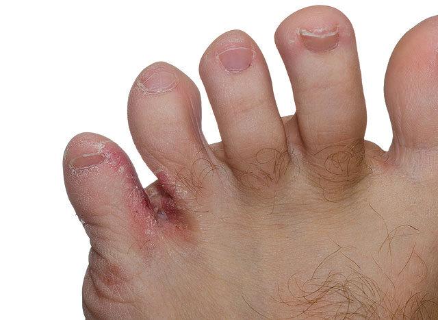 pikkelysömör lábujjak kezelése