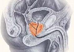 A benignus prosztata megnagyobbodás és szövődményei; Forrás: http://www.prostate-ease.com